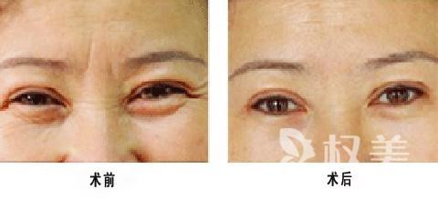 什么是botox祛除皱纹 术后肿胀感和紧绷感都是正常反应