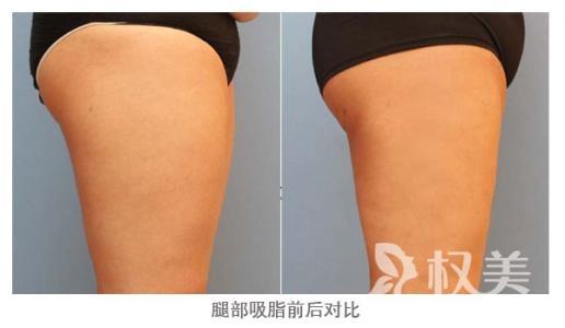 大腿环形吸脂价格是多少 过度自然能够塑造大腿优美曲线