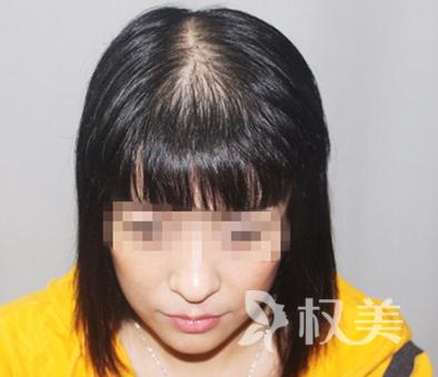 科发源上海植发整形医院 自体头发种植让我长发及腰