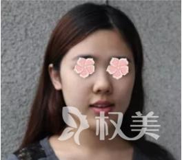 朝天鼻整容价格贵不贵 采用延长鼻翼软骨等方法来矫正