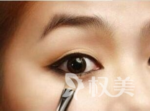武警广西总队医院整形科开眼角整形手术 让眼睛更大更迷人