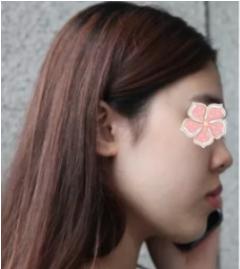 芜湖华山医院整形科做鼻综合硅胶假体手术 让我颜值开挂心情美美哒