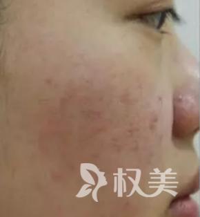 从中学开始长痘 给大家看看我在武汉仁爱整形医院做完激光祛痘效果对比图