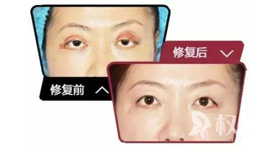 眼睑吸脂术效果怎么样 还对睫毛刺激眼球及眼睑下垂矫正也有作用