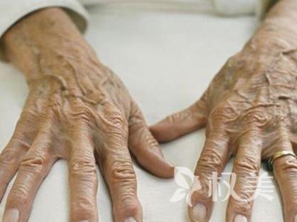 年轻人长老年斑怎么回事 激光祛斑从根本上解决肌肤的色斑问题