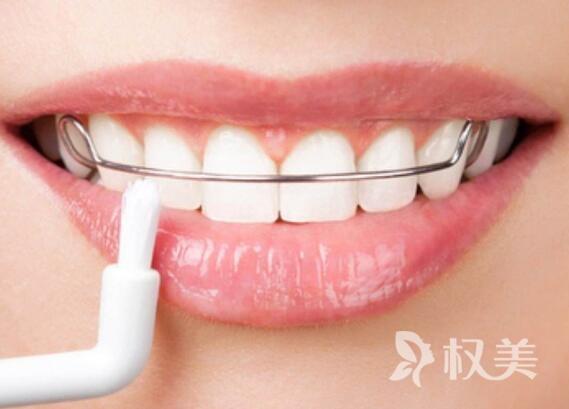 吉林大学口腔医院整形科做隐形矫正牙齿多少钱
