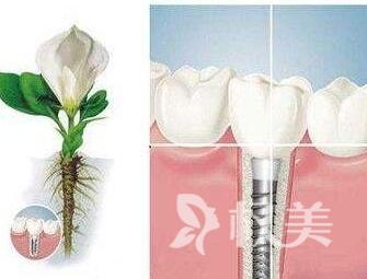 中山种植牙好的医院 中山大学附属口腔医院种植牙价格