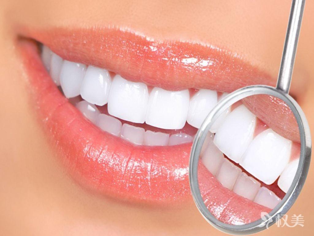 美容冠牙齿矫正前后对比 美容冠牙齿矫正让你笑容更自信
