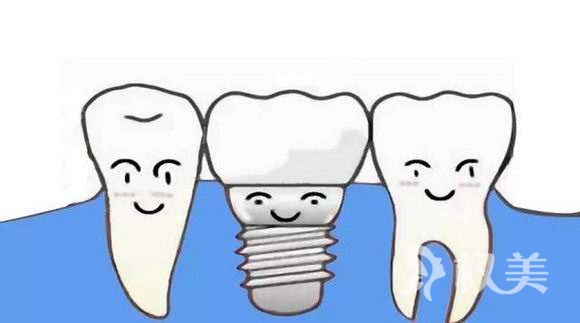 佛山美莱怎么样 种植牙费用是多少