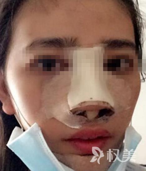 老婆趁我不在家偷偷做鼻子整形术 术后变成现实版太后
