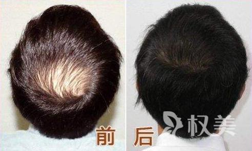 郑州植发价格是多少 9个月后才能看出毛发移植术的效果