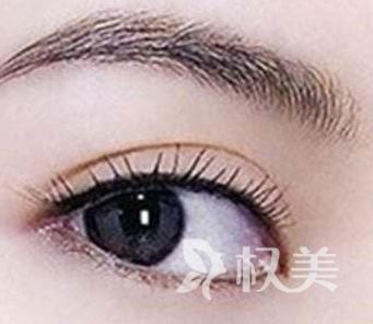 种植眼睫毛哪种技术好 FUE技术是国际上一项革命性的植发技术
