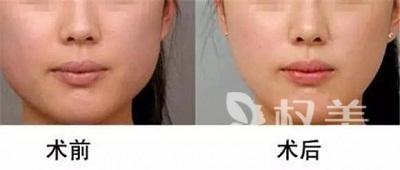 整脸型要多少钱 切除+磨骨法综合运用面部线条更流畅
