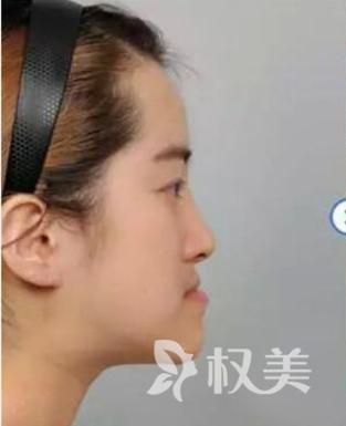 真是受够了 重庆医科大学附属口腔医院牙性+骨性地包天矫正让我美滋滋
