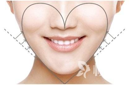 苹果肌较低怎么办 自体脂肪填充苹果肌让笑容更甜美