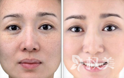 去皱大概需要多少钱 光子嫩肤除皱的效果能维持多久