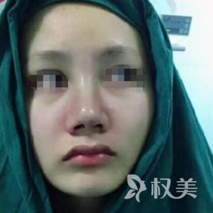 北京空军指挥医院整形科做完假体隆鼻后恢复自然 有颜值的感觉真好