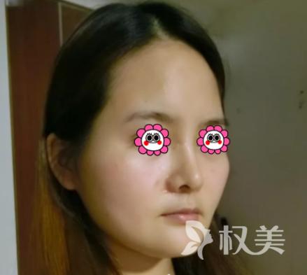黑龙江省医院颌面整形科做完自体脂肪面部填充 闺蜜们都说我少女感十足