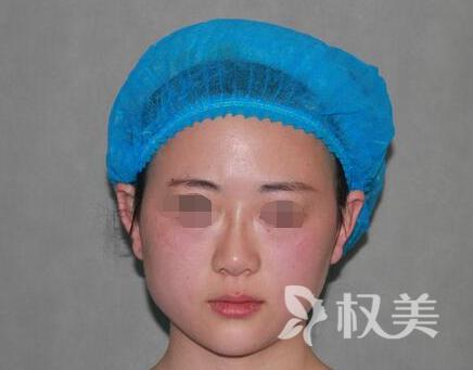 南京龙蟠医院整形美容中心 隆鼻修复手术 为我再现美丽容颜
