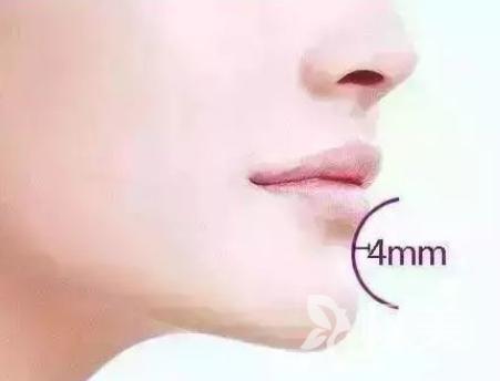 面部轮廓不清晰下巴短小怎么办 假体垫下巴让你魅力重生