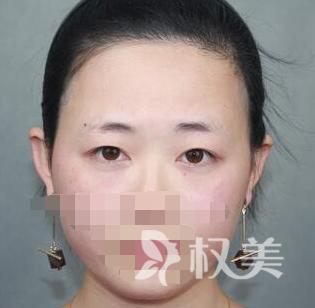 南京医科大学整形美容中心 切双眼皮过程 见证了我的完美蜕变