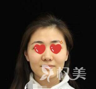 给肌肤补水势不可挡 说说我在广西中医学院第一附属医院美肤整形科水光针注射过程