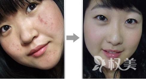 脸上痤疮怎么治疗 光子祛痘疗程治疗后效果显著