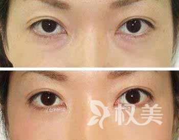 光乳化去眼袋多少钱 是一种微创去眼袋的方法