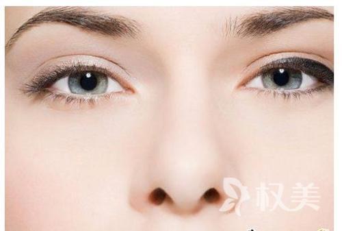 鼻子美不美 鼻翼塑形也很重要