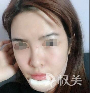 萍乡人民医院整形科 隆下巴整形 助我蜕变完全女人