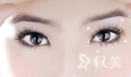 韩式双眼皮 和明星同款美眼 效果更自然