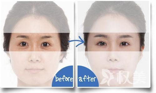 怎么去眼袋 专家们告诉你为什么选择激光祛眼袋