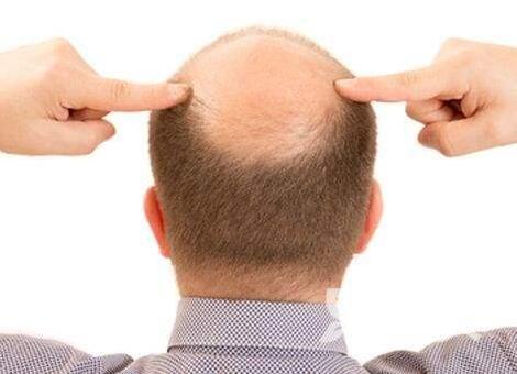 秃顶能治么 西宁华美头发种植效果怎么样
