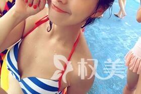 温州广慈医院整形外科 自体脂肪隆胸术 终于蜕变完美女人