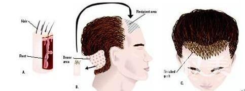 头发稀少怎么办 石家庄友谊烧伤医院头发种植价格