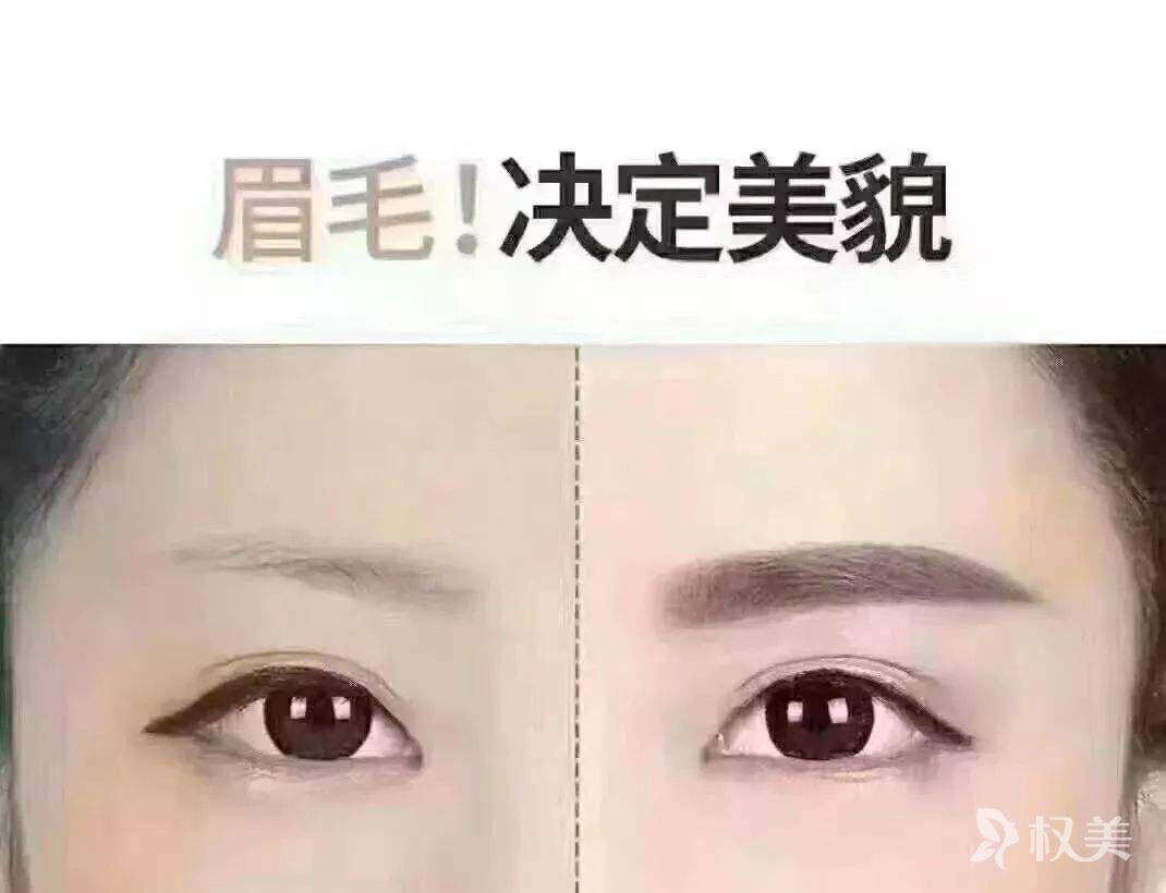 怎么改善眉毛脱落  武汉美基元眉毛种植效果好不好