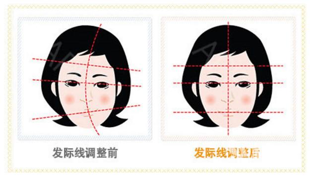 什么样的发际线适合自己 上海申江医院发际线种植疼不疼