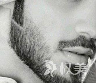 男人为什么不长胡子 北京高新医院胡须种植可靠吗
