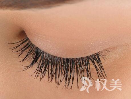 北京同仁医院植发要多少钱 睫毛种植会不会很贵