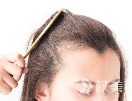 女生掉头发突然很厉害怎么办 发际线种植有效果吗