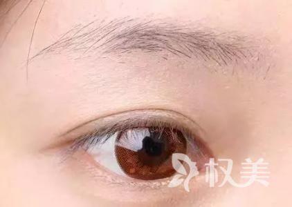 眉毛稀疏太久怎么办 西安医学院眉毛种植效果好吗