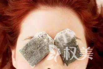 祛眼袋哪种手术好 外切法去眼袋多少钱
