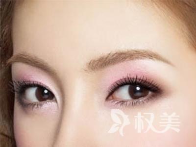 韩式三点双眼皮多少钱 多久恢复?能保持多久
