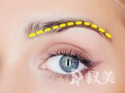 做眉毛有什么危害 上海新生眉毛种植好处与坏处