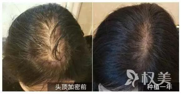 头发太稀疏怎么办 长春头发加密需要多少钱