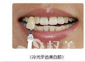 北京拜尔昊城口腔医院整形科 美白牙齿我选冷光 结果很意外