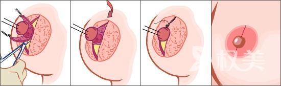 乳头内陷怎么办 乳头内陷矫正手术不会伤害乳头末端的神经感觉组织