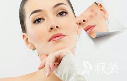 疤痕能去除吗 激光祛疤术能气化病变组织