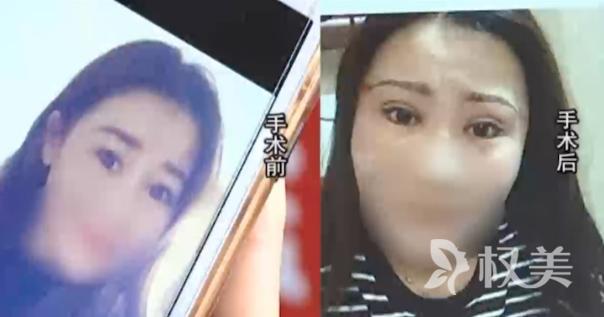 26岁女孩儿小娜割双眼皮失败 好好男朋友也吹了