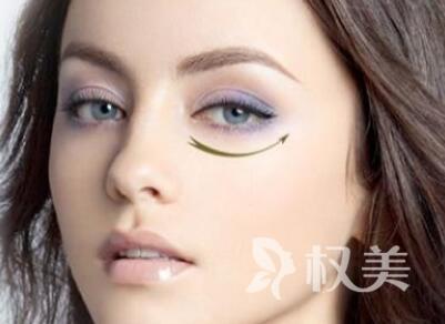 杭州哪家整形医院好 吸脂去眼袋能永久吗